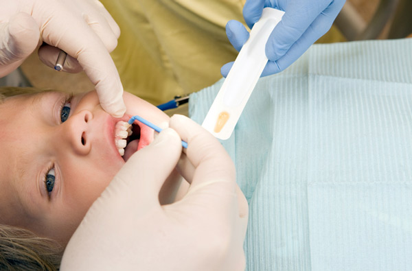 Young boy receiving fluoride treatment at Perrinville Family Dentistry in Edmonds, WA