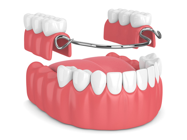 Rendering of a removable partial denture at Perrinville Family Dentistry in Edmonds, WA