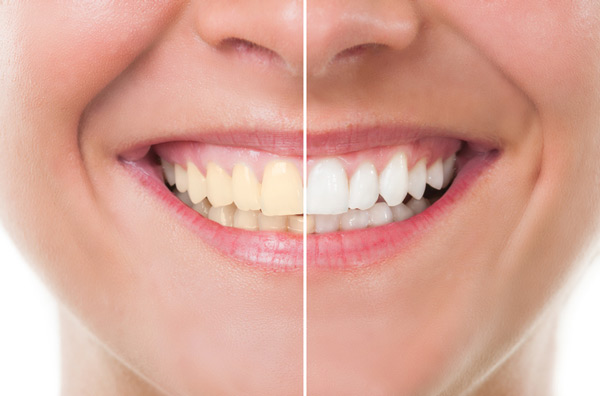 Before and after photo of teeth whitening treatment at Perrinville Family Dentistry in Edmonds, WA
