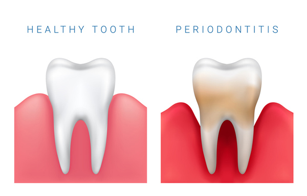 Rendering of a healthy tooth next to one with periodontitis from Perrinville Family Dentistry in Edmonds, WA